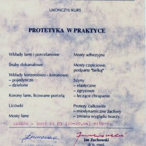 protetyka-w-praktyce